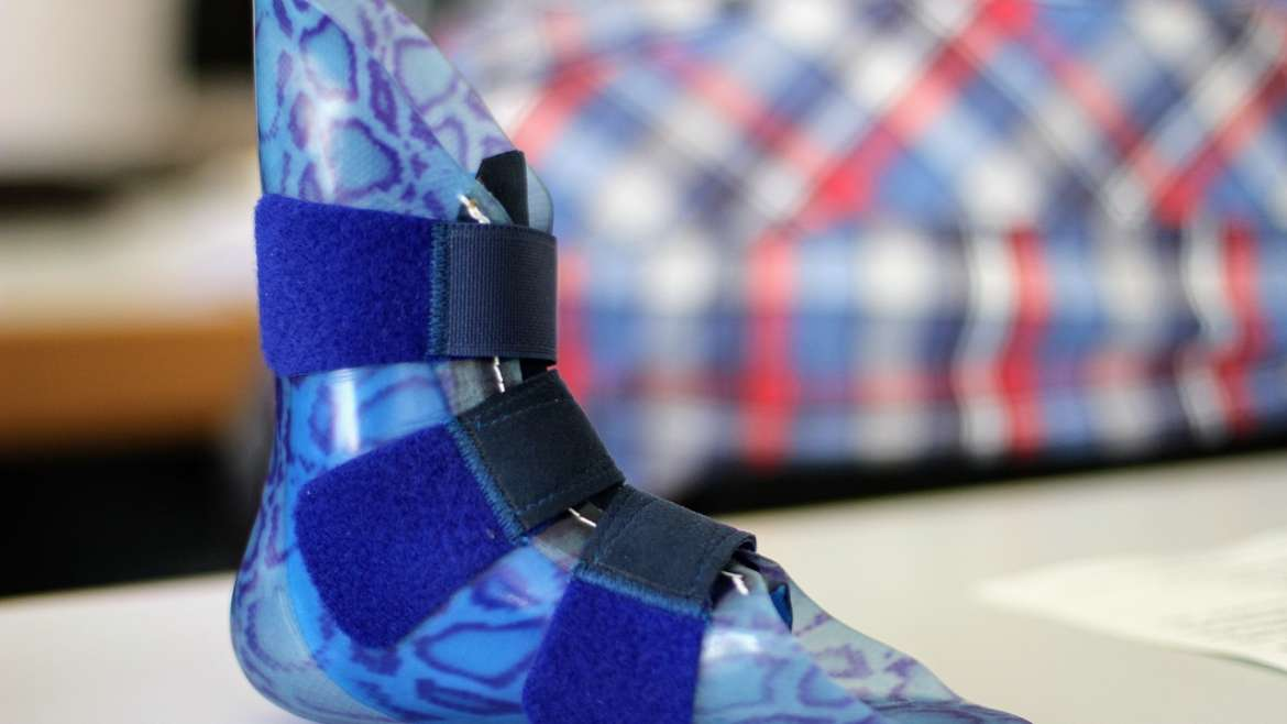 5 Tips For a Comfortable Prosthesis